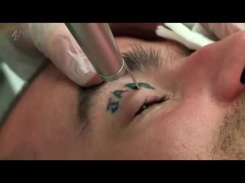 Tattoo Removal Laser Treatment and its results