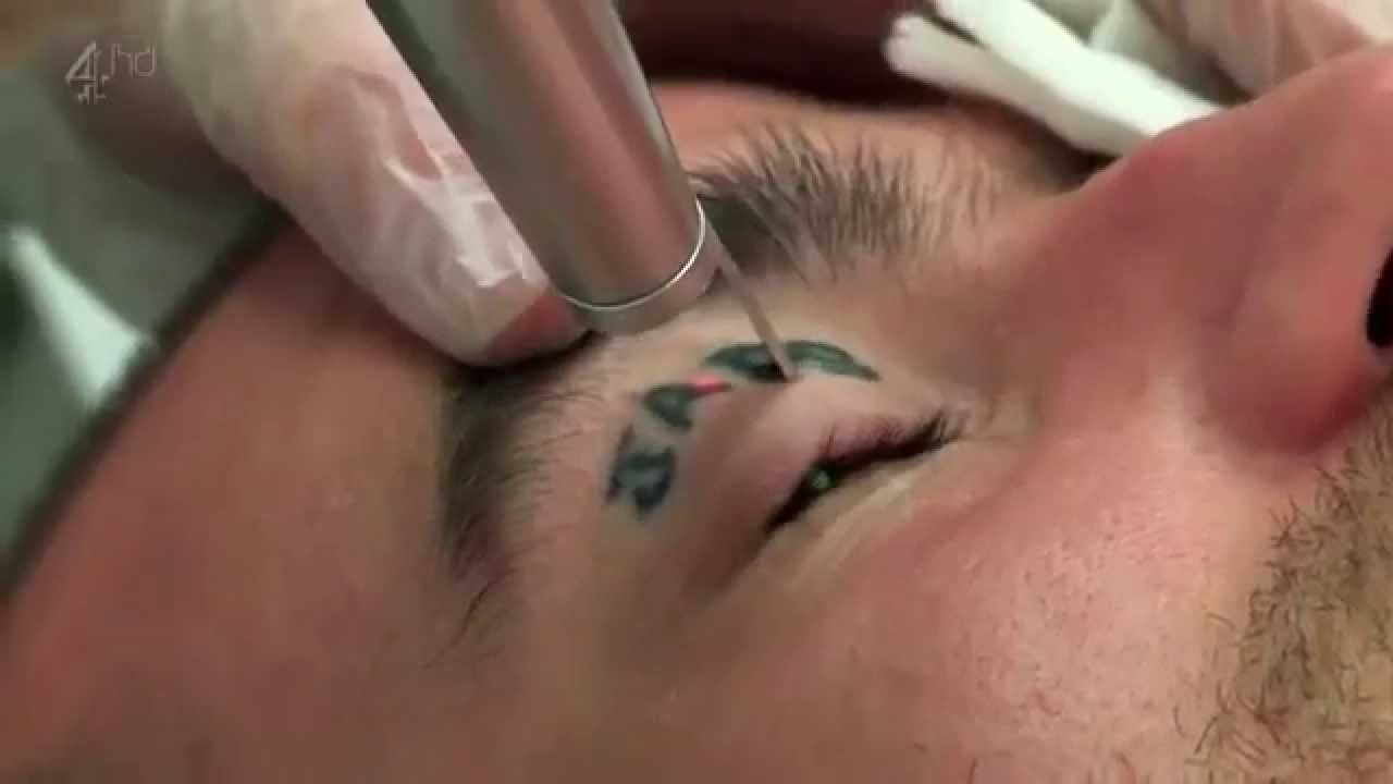 Tattoo Removal Laser Treatment And Its Results Youtube
