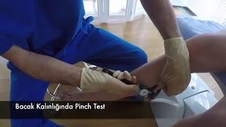 ✔️ Bacak Kalınlığında Pinch Test - Ahmet Karacalar Prof Dr