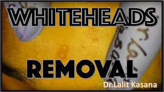 WHITEHEADS REMOVAL PART-1 BY DR.LALIT KASANA