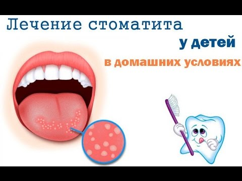 Лечение гемофильной палочки у взрослых