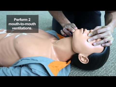 Mouth to Mouth Ventilations (CPR Steps)
