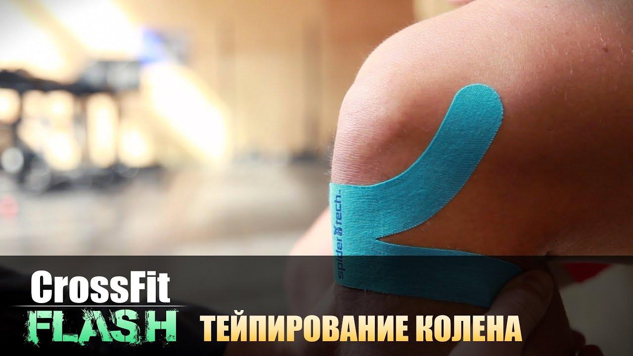 Тейпирование коленных суставов препараты для суставов ног