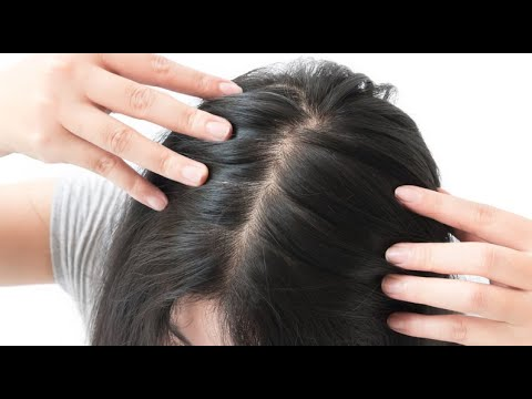 female-hair-loss-products