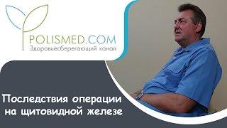 Последствия операции на щитовидной железе: вес, печень, кожа, волосы. Профилактика последствий