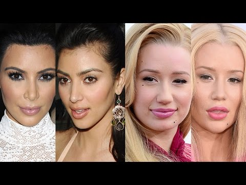 6 Celebs Who've Admitted to Plastic Surgery