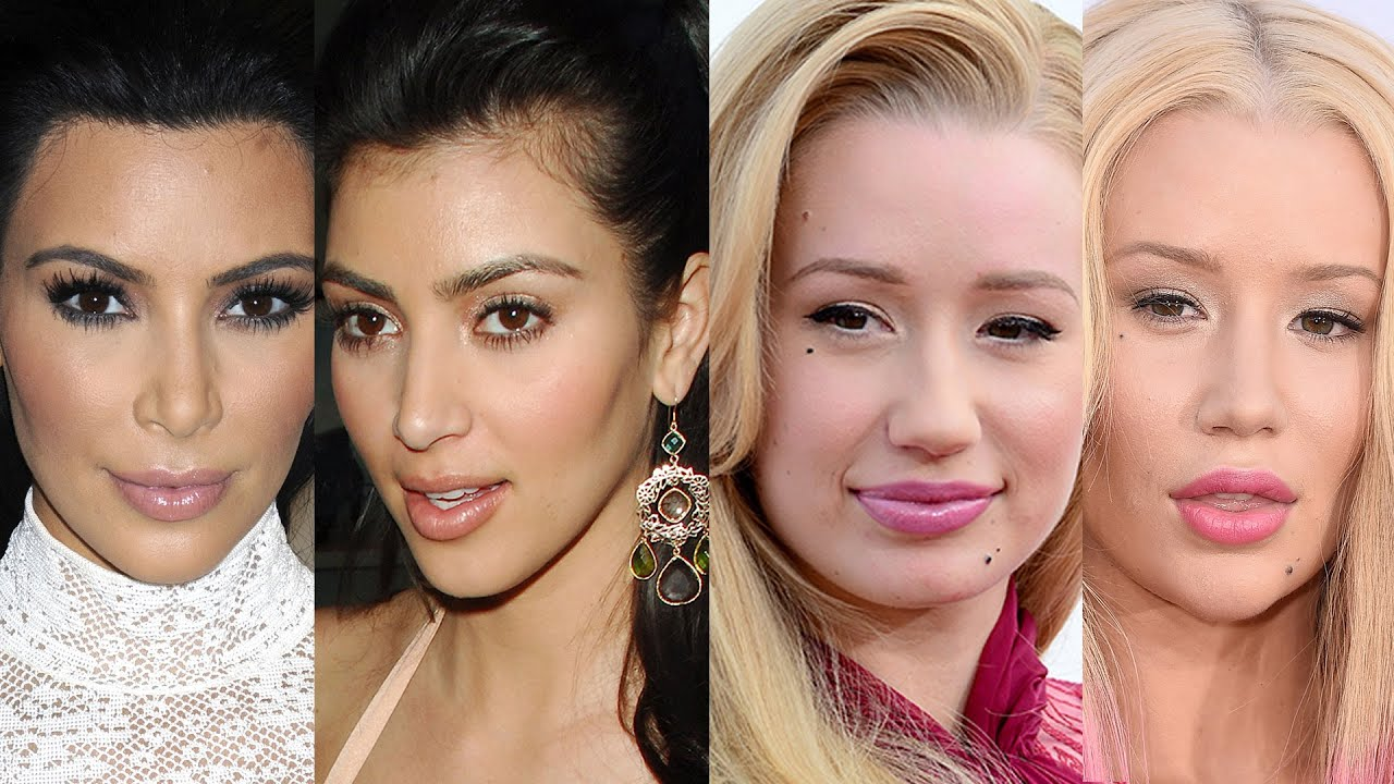 6 celebs who've admitted to plastic surgery - youtube