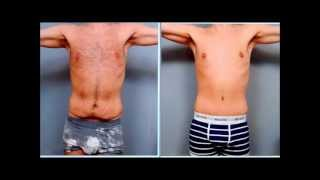 Male Tummy Tuck - Case Study | Dr. Sterry