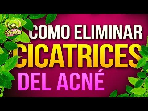 Remedios Para Las Cicatrices Del Acne - Como Eliminar Cicatrices Del Acne