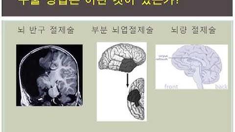 뇌전증의 비약물 치료 - 조용원(계명대 동산의료원 신경과)
