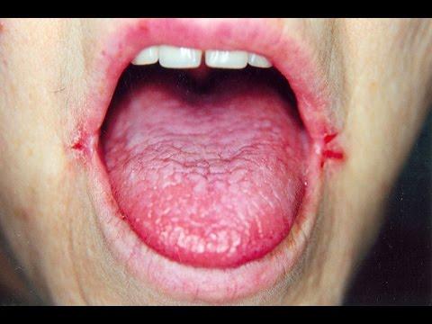 Angular Cheilitis Review How To Treat Angular Cheilitis