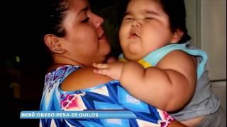 Bebê de dez meses pesa 28 quilos por problema de saúde