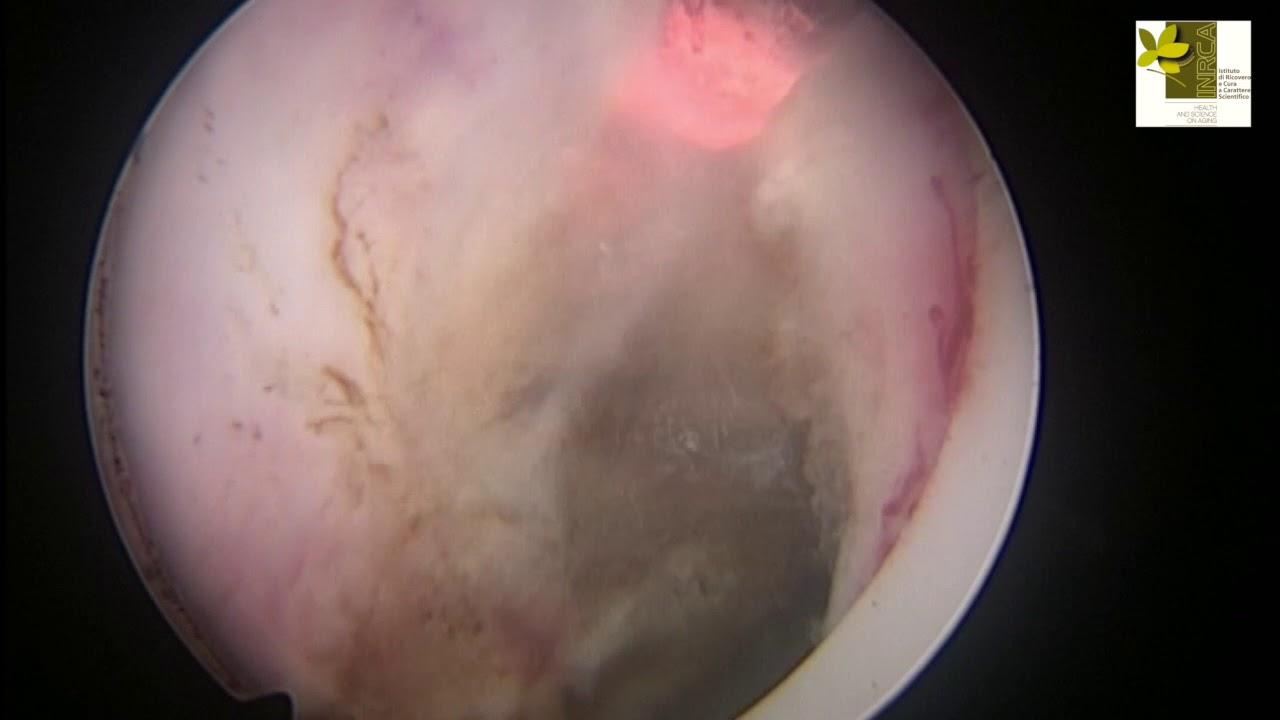 intervento prostata laser holmio santa maria bari il