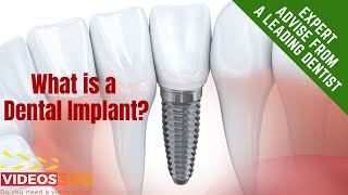 Now Trending - Dental Implants with Dr. Palka Sharma – Dr. Palka Sharma