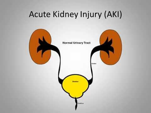 Pediatric Acute Kidney Injury