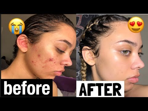 hqdefault - Does St Ives Apricot Scrub Work For Acne Yahoo