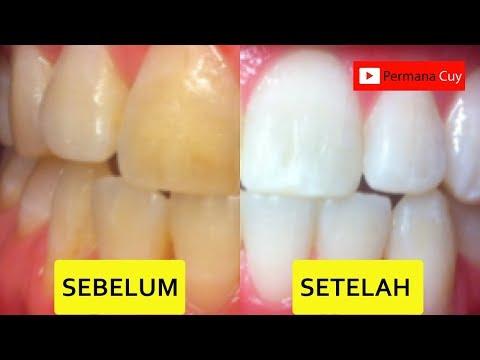 Cara Memutihkan Gigi Di Rumah Dalam 3 Menit