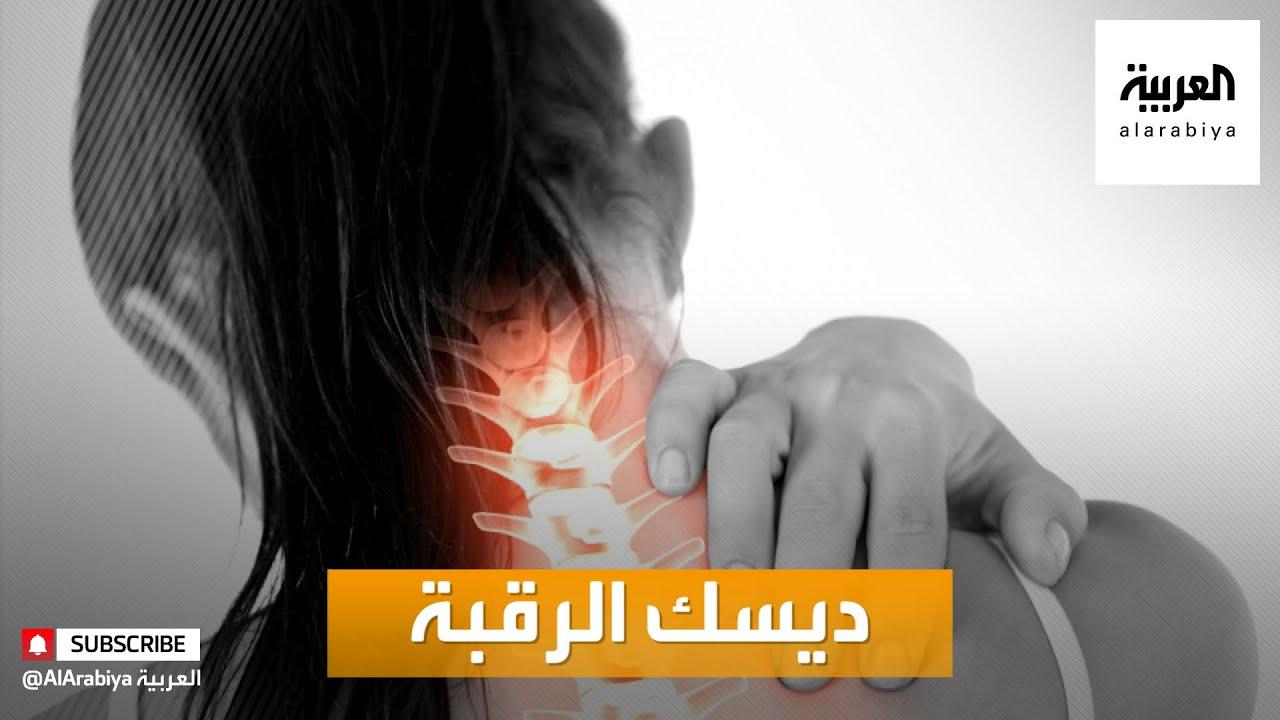 صباح العربية | تعرّف على أعراض ديسك الرقبة  - نشر قبل 4 ساعة