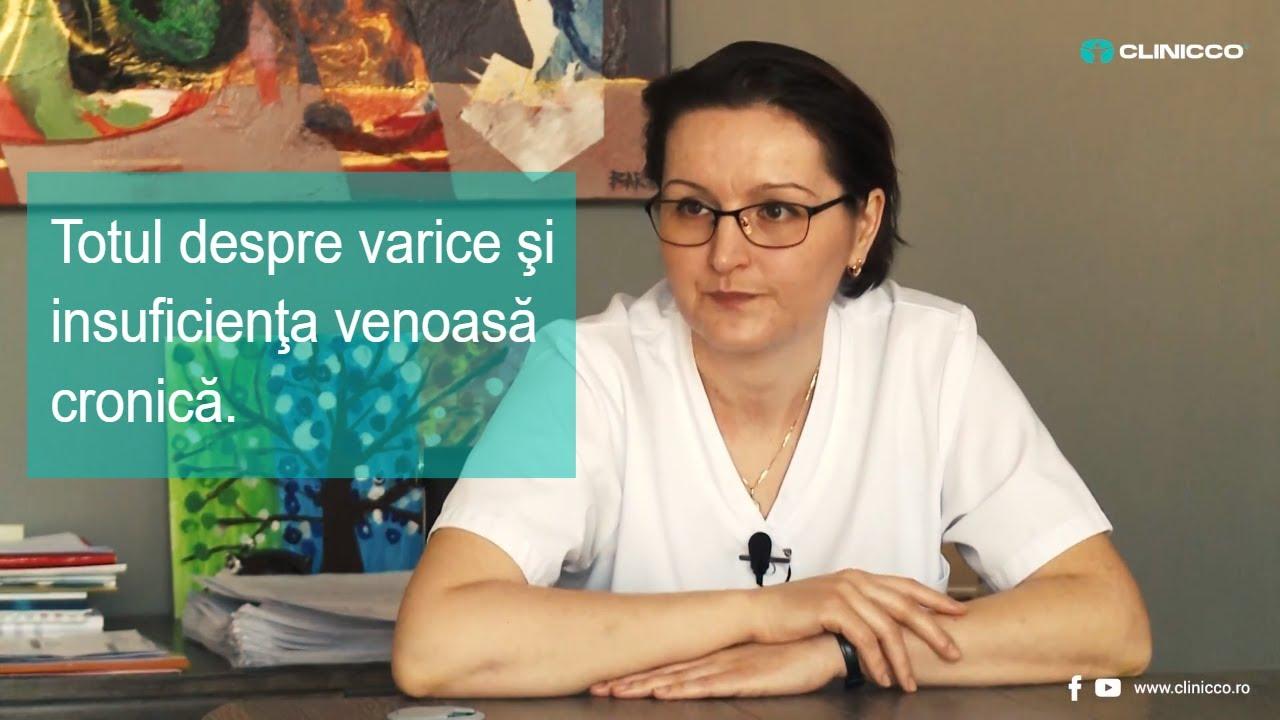 tratamentul varicozei în cernogolovka)