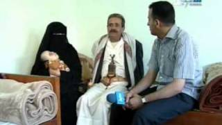 أغرب حالة تشوه في العالم في وجه طفل يمني