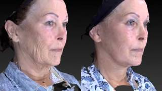 Facial Rejuvenation 3D Before and After-03