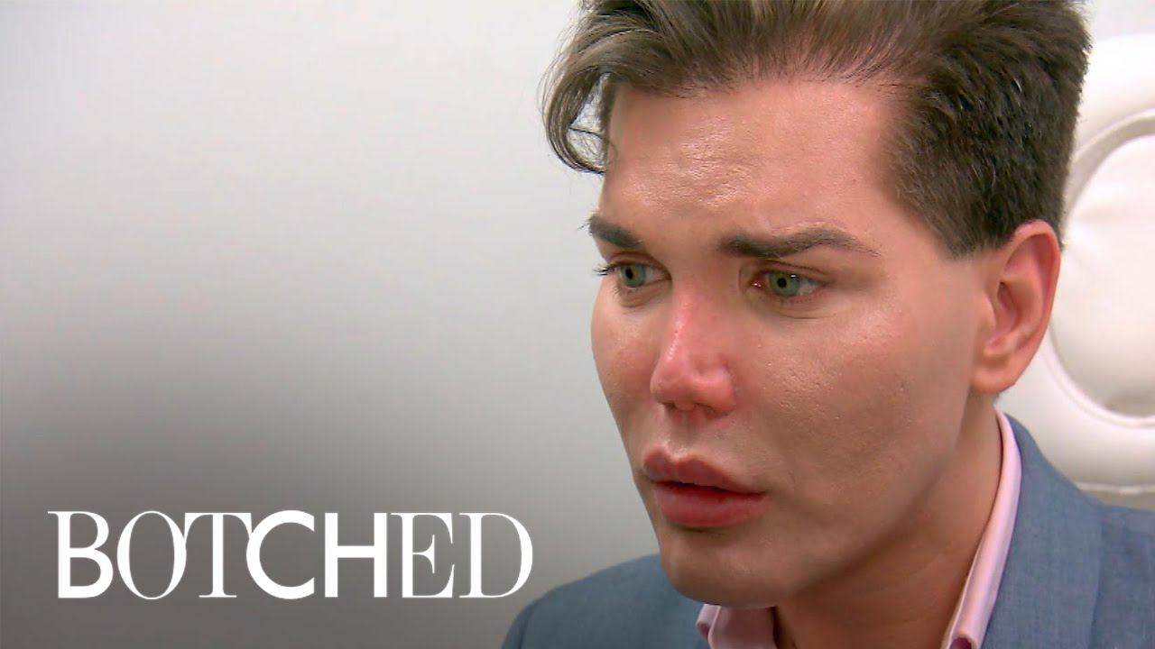 Human Ken Doll' Rodrigo Alves May Lose His Nose After