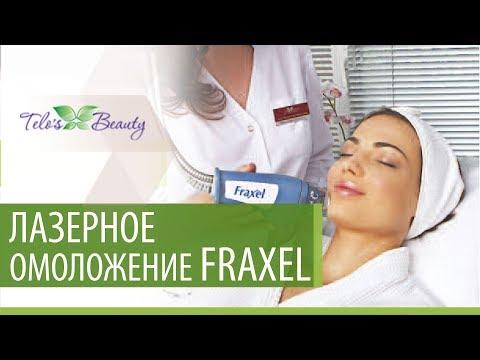 Лазерное омоложение кожи Fraxel в клинике Telo's Beauty
