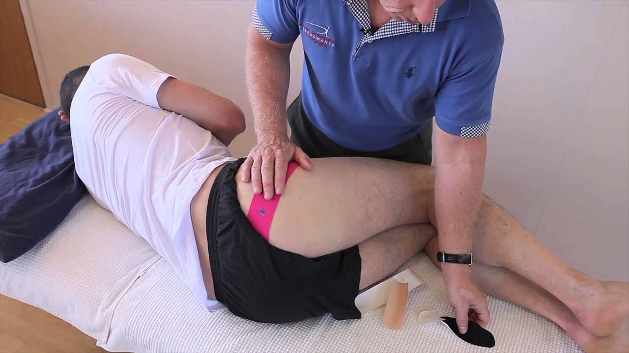 How to treat Piriformis Syndrome / Gluteal pain with Kinesiology taping