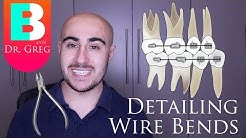 [BRACES EXPLAINED] Detailing Wire Bends