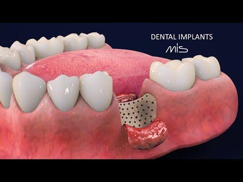 Dental Implants by MIS - Matrix Surgery Guide (3D Animation Dental Tutorial)