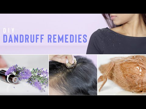 HOW TO GET RID OF DANDRUFF AT HOME | DIY DANDRUFF REMEDIES FOR THICK & HEALTHY HAIR