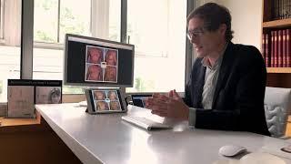 Gynécomastie – Résultats avant/après opération sur plusieurs patients