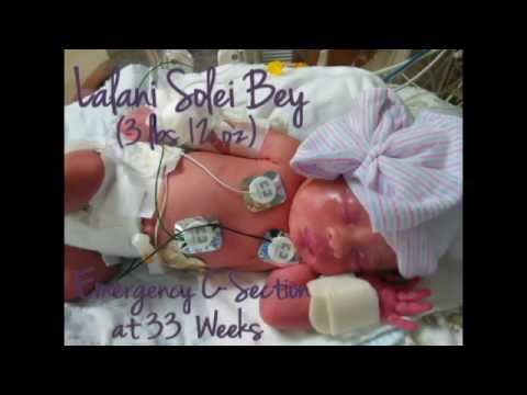 Emergency C-Section At 33 Weeks (IUGR) | Lalani Solei Bey 3lb 12oz