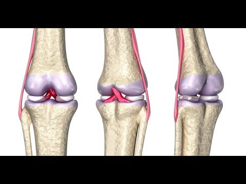 The Difference Between Partial And Complete Ligament Tears | Dr. Eric Rightmire