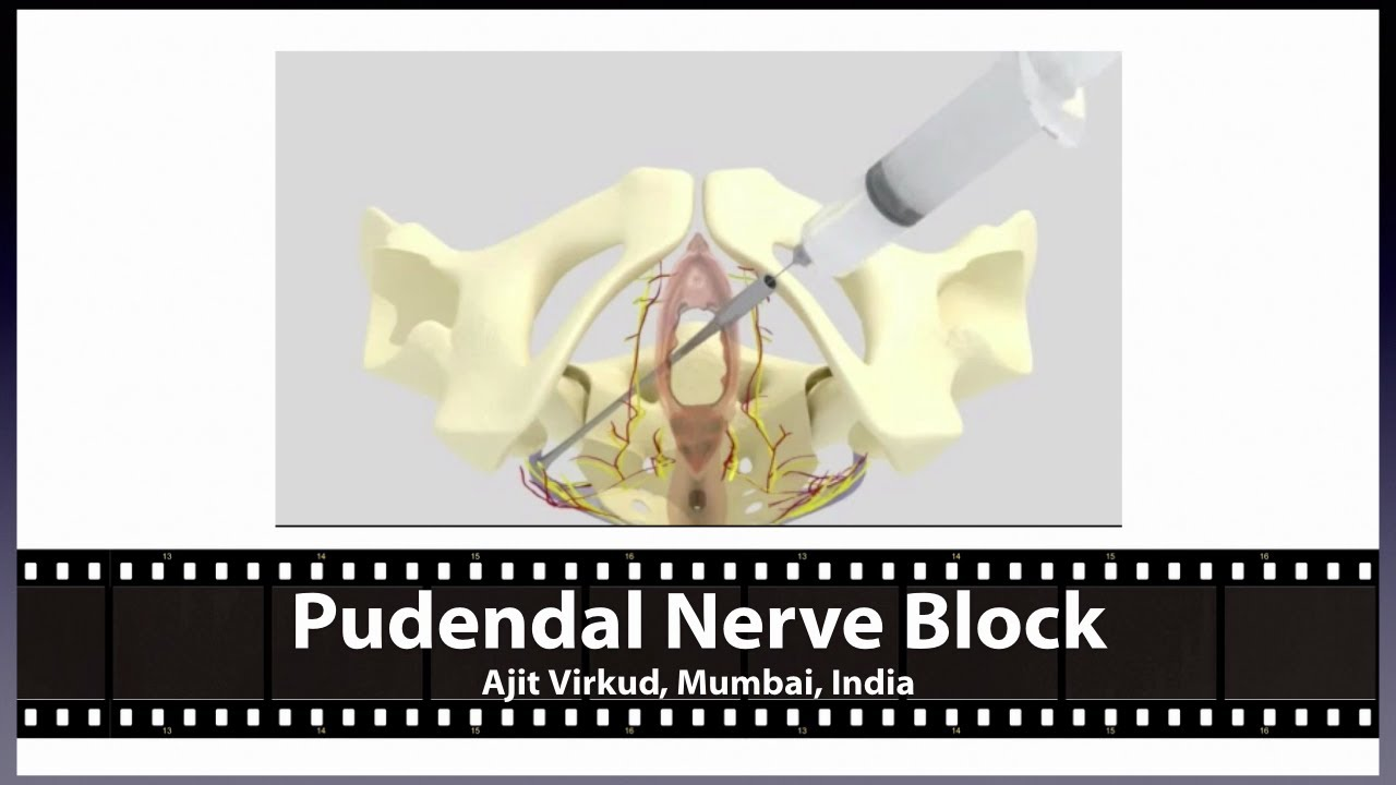 Pudendal Nerve Block - YouTube