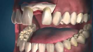 Имплантация зубов. Имплантаты Alpha Bio.(Имплантация зубов. Имплантаты Alpha Bio., 2012-11-26T08:32:53.000Z)