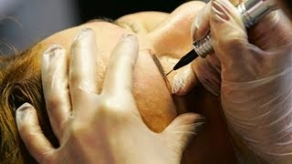 How to Use Tattooing to Hide Hair Loss | Thinning Hair