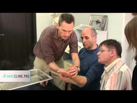 Перелом костей запястья руки — лечение, восстановление