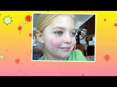 Аллергия на лице пятна, высыпания   Признаки аллергической реакции