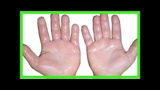 Hinchadas para y manos con dolor las remedios caseros