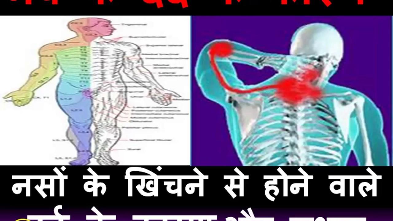 नसों के खिंचने से दर्द के कारण/लक्षण (Nerve ke dard ke karn or lakshan )
