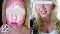 hqdefault - Photodynamic Therapy For Acne Does It Work
