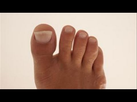 How To Remedy Yellow Toenails - YouTube