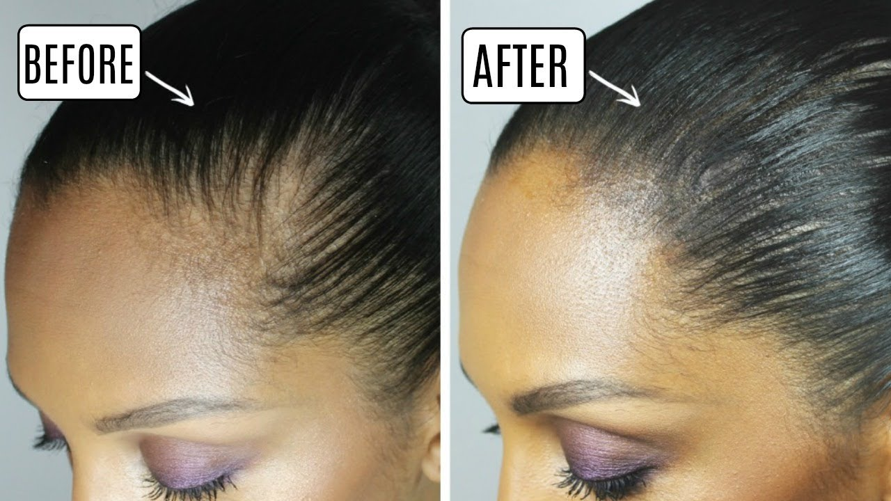 how to: hide a bald spot | discocurlstv