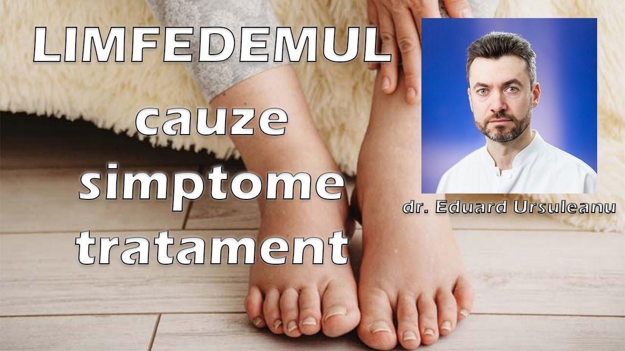 puncte pe picioare varicoză