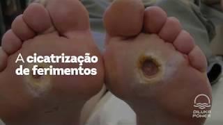 Pernas fotos úlceras diabéticas