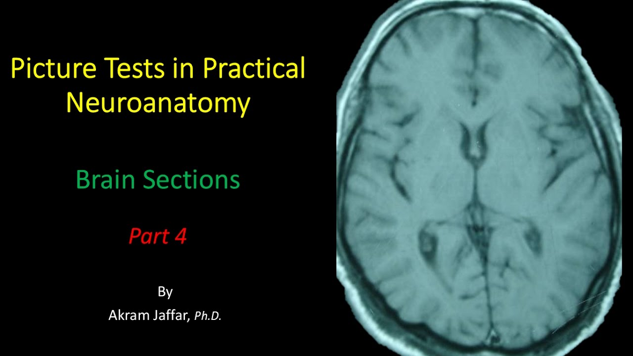 Picture Test in Neuroanatomy Brain Sections 4 - YouTube