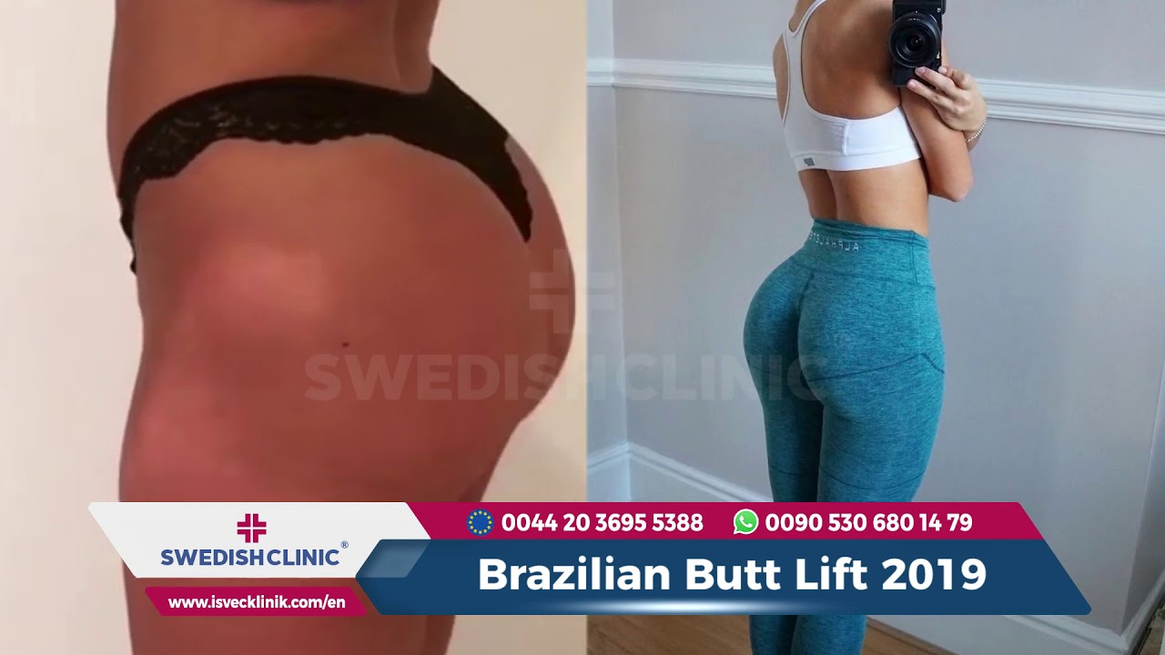 Brazilian Butt Lift 2019