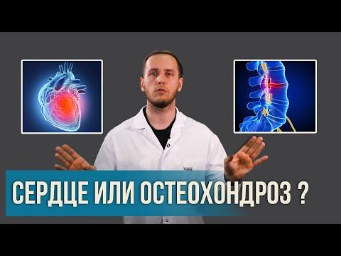 Боль в грудной клетке: СЕРДЦЕ или ОСТЕОХОНДРОЗ? | Раскладываем все по полочкам | Доктор Епифанов