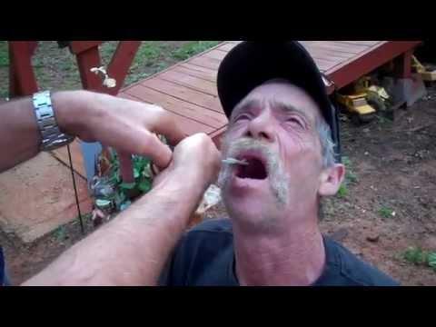 Zahn Gezogen Genäht Rauchen
